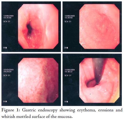 a strongyloidosis