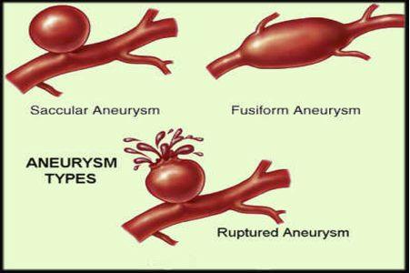 Oman medical journal archive for Aneurysm of the spleen