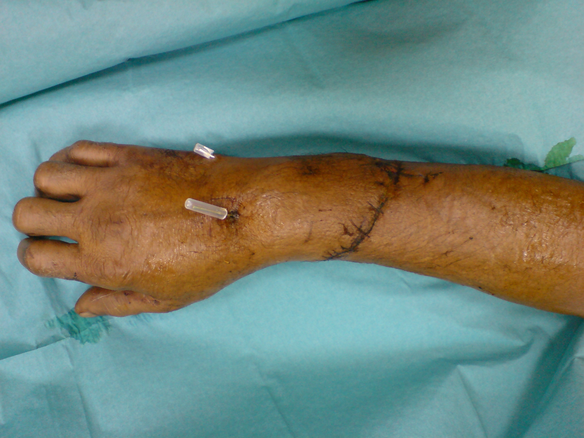 Replantation of an Amputated Hand: A Rare Case Report and