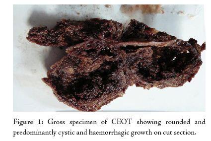 Adenomatoid Odontogenic Tumor Gross Full Text: Pindborg Tu...